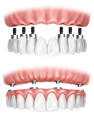 Dental Implants Materials in Shillington